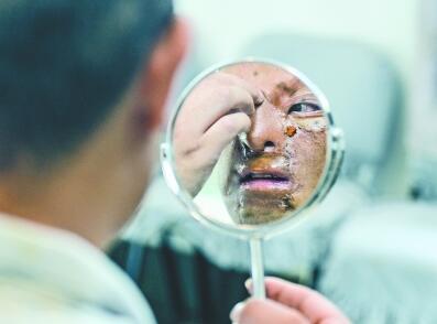 """情歌小品: 24岁襄阳小伙在汉成功""""换脸"""" 幼时脸部烧伤被遗弃"""